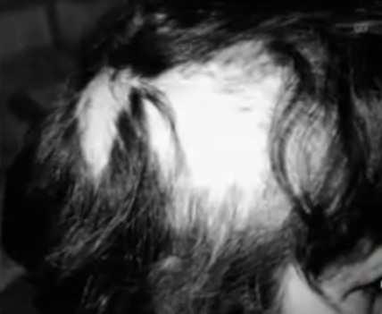 Caída de cabello Betty Cash